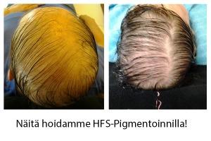 Näitä hoidamme HFS-Pigmentoinnilla