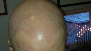 alopecianainen 11.13