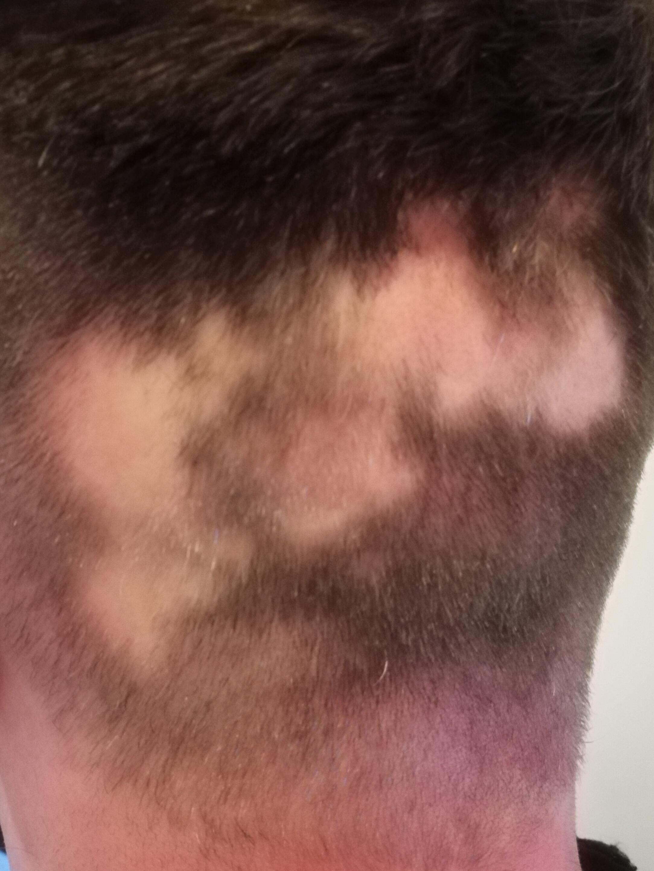 Päänahanpigmentointi - before - Bravablogi