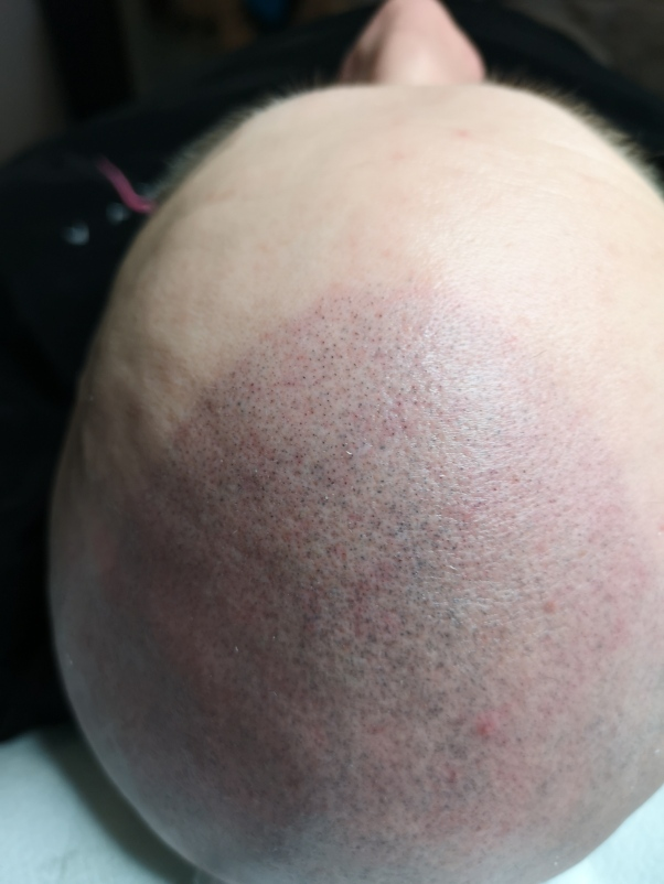 Hfs-päänahanpigmentointi neulalla, 1. kerta