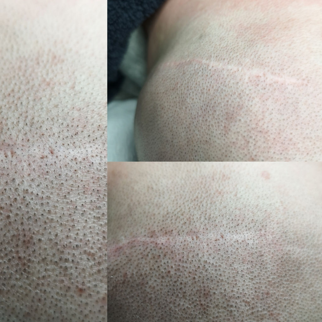 Brava- pääänahan pigmentointi. Päänahan arven pigmentointi. Kuvat ennen ja jälkeen sekä suurennus pigmentoinnista